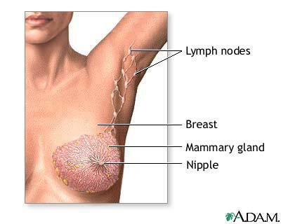 Image result for developing breast cancer